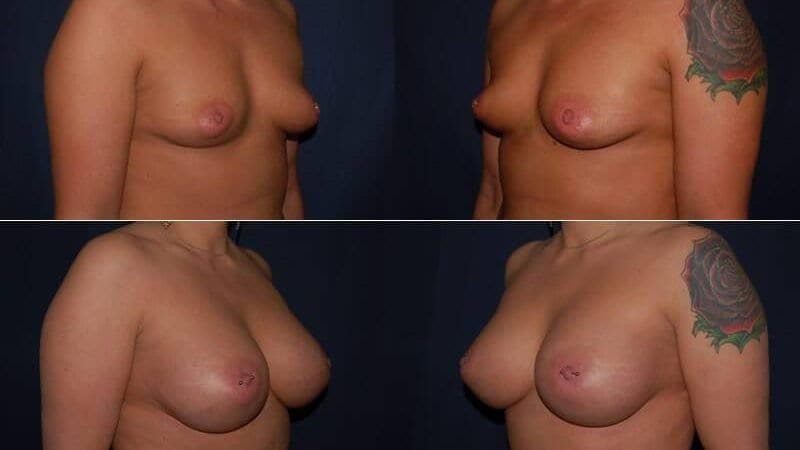 112 Breast Enlargement Before & After Photo