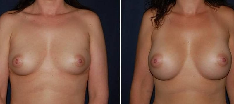 189 Breast Augmentation Before and After Photo