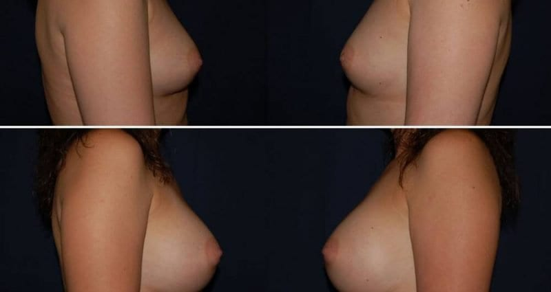 188 Breast Augmentation Before and After Photo