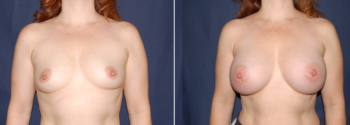 111 Breast Enlargement Before & After Photo