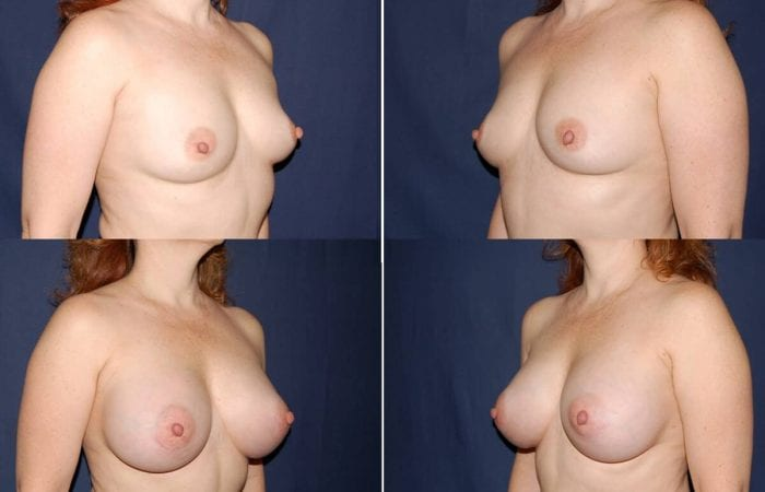 110 Breast Enlargement Before & After Photo