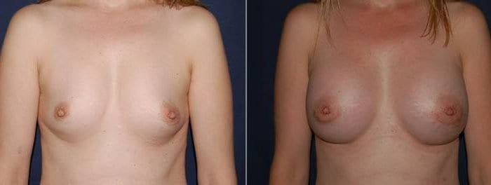 186 Breast Augmentation Before and After Photo