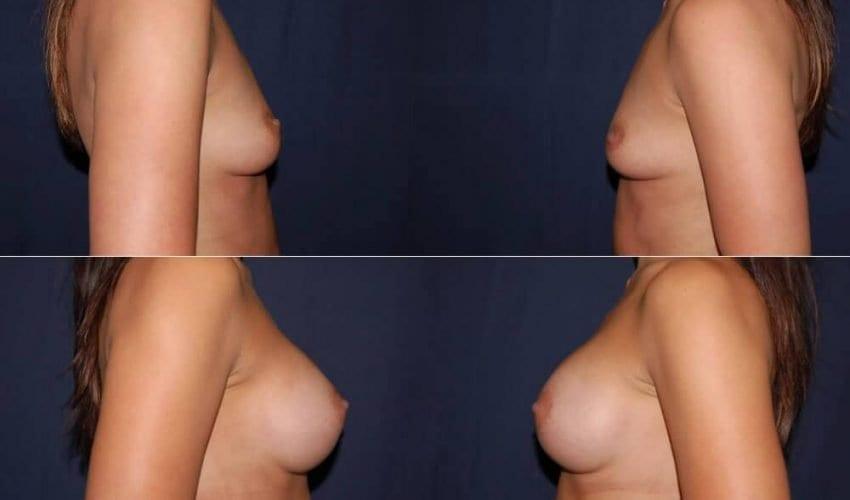 182 Breast Augmentation Before and After Photo
