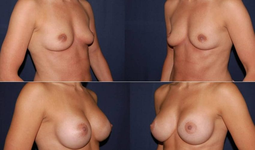 181 Breast Augmentation Before and After Photo