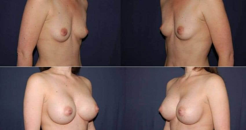 176 Breast Augmentation Before and After Photo