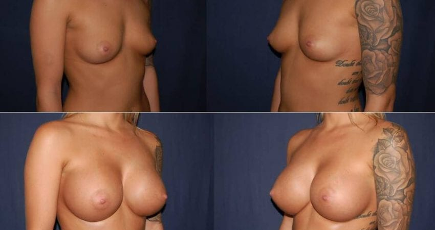 173 Breast Augmentation Before and After Photo