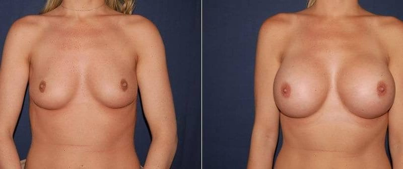 172 Breast Augmentation Before and After Photo