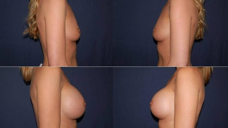 171 Breast Augmentation Before and After Photo