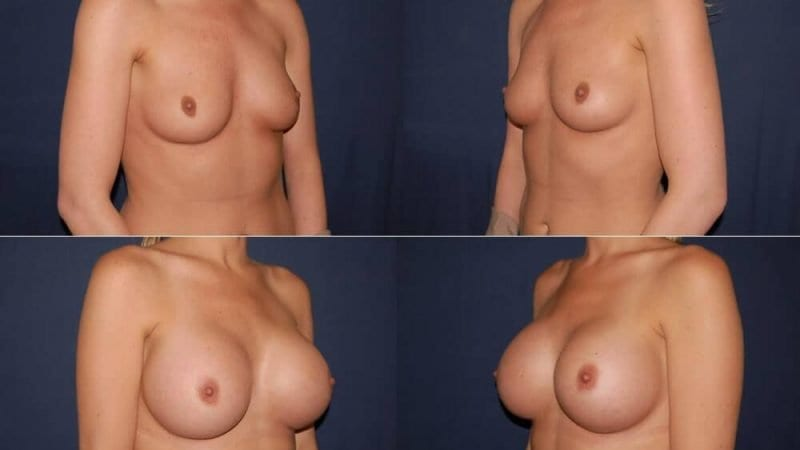 170 Breast Augmentation Before and After Photo