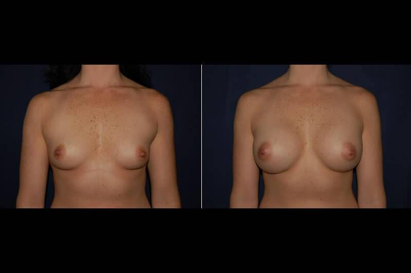 354 Breast Augmentation Before and After