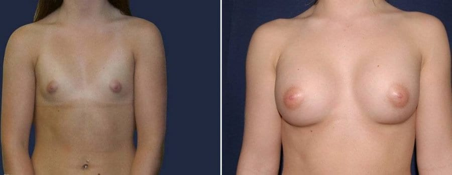 350 Breast Augmentation Patient Before and After Photo
