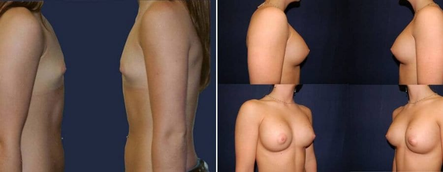349 Breast Augmentation Patient Before and After Photo