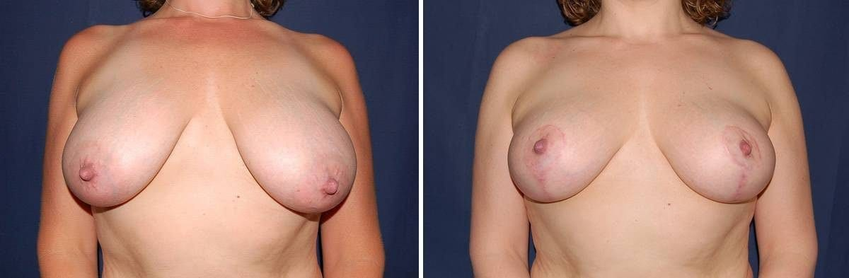 336 Breast Lift without Implants