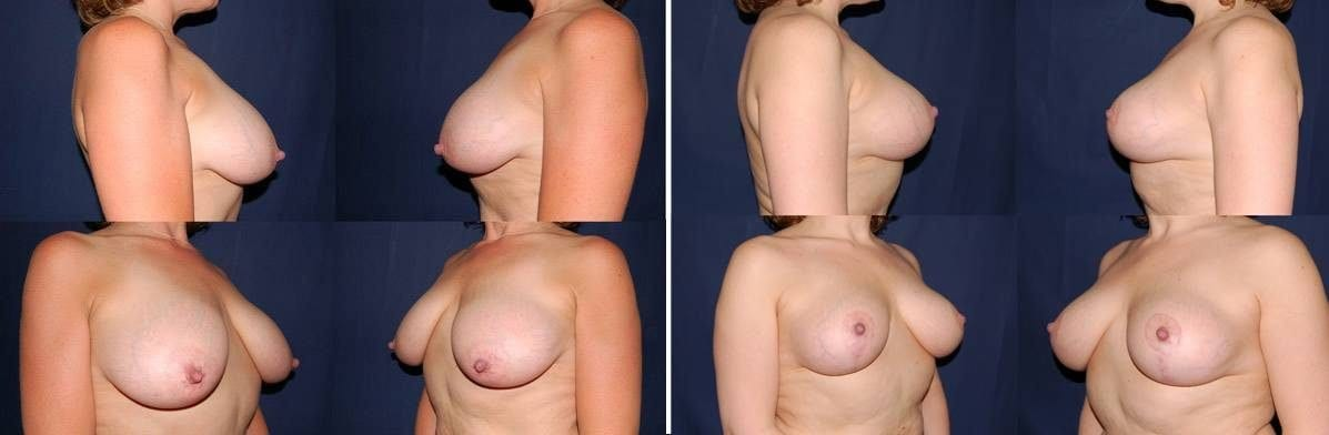 Breast Lift Without Implants 11
