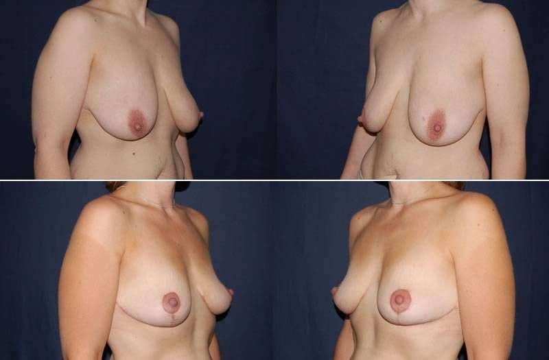 330 Breast Lift without Implants