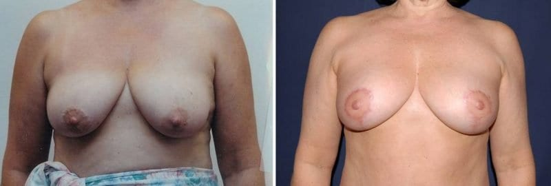 329 Breast Lift without Implants