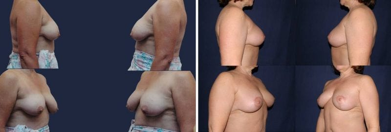 328 Breast Lift without Implants