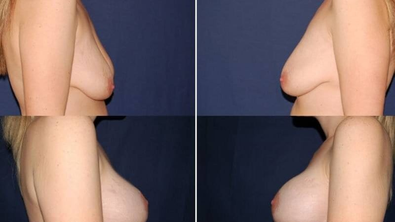 34 Breast Lift Surgery with Implants
