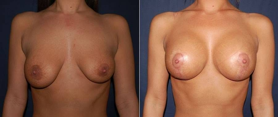 65 Breast Lift with Implants