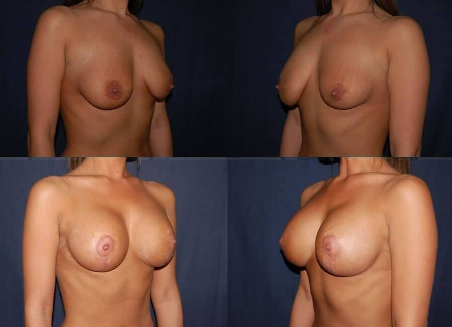 64 Breast Lift with Implants