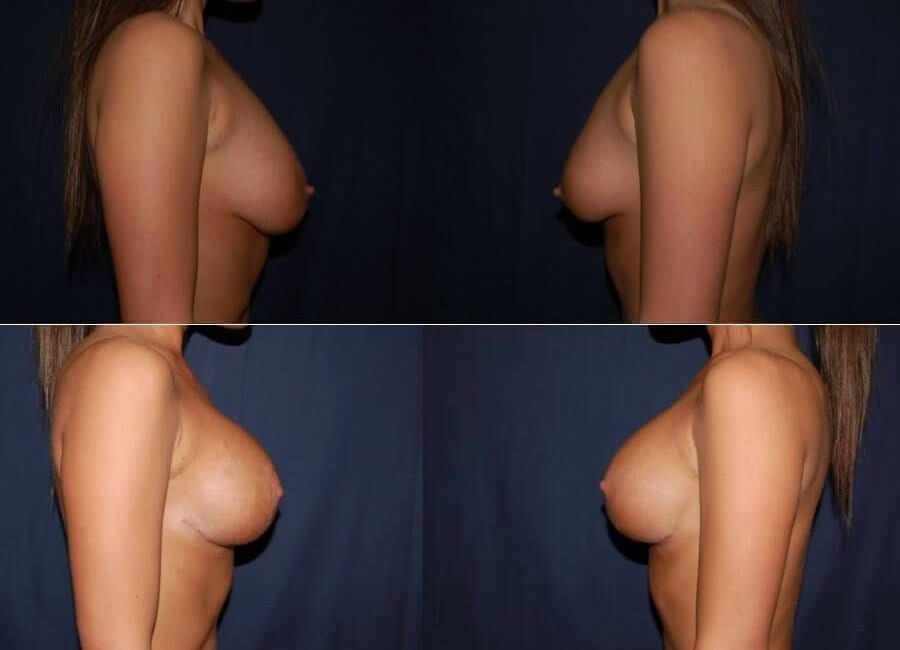 63 Breast Lift with Implants