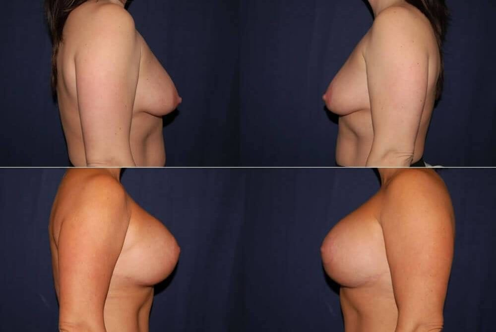 61 Breast Lift with Implants
