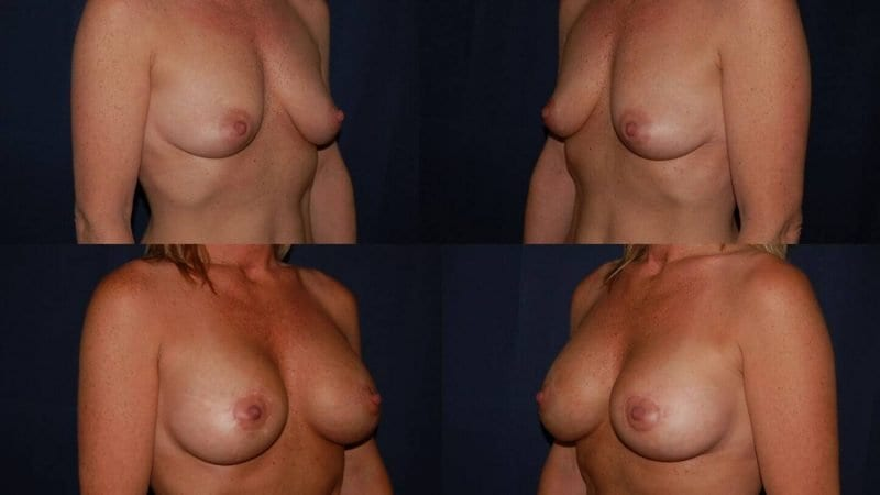 52 Breast Lift with Implant