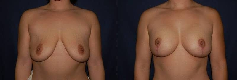 48 Breast Lift with Implant