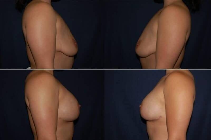 46 Breast Lift with Implant
