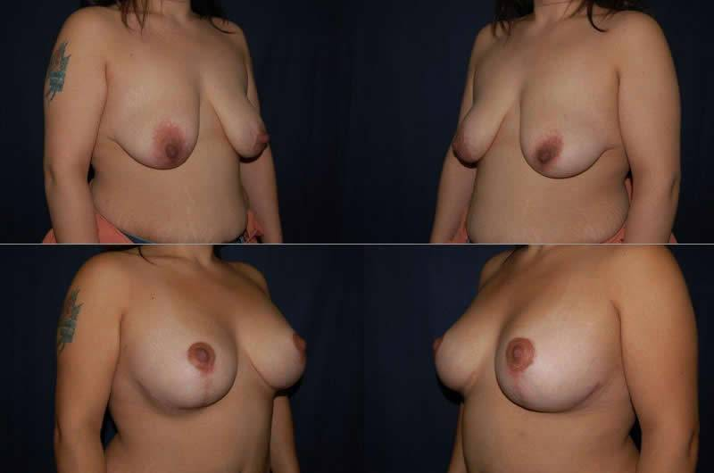 44 Breast Lift with Implants