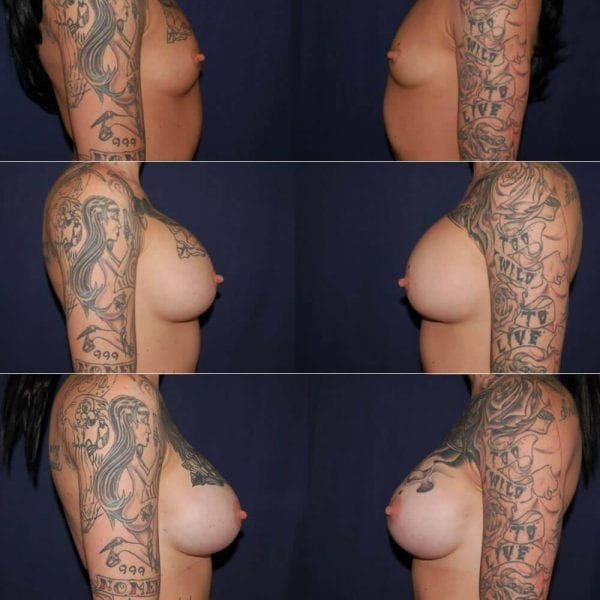 108 Gummy Bear Breast Implants Before and After Photo
