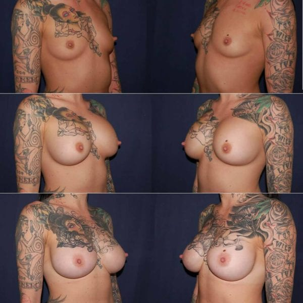 107 Gummy Bear Breast Implants Before and After Photo