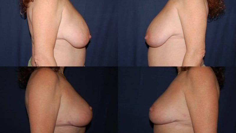 262 Breast Reduction Surgery Before and After