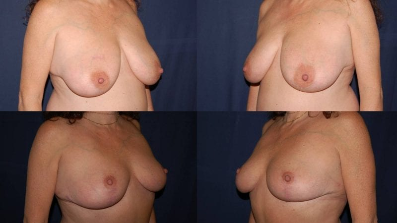 261 Breast Reduction Surgery Before and After