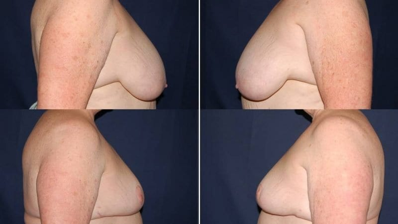 260 Breast Reduction Surgery Before and After Photo