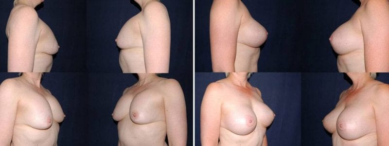 105 Secondary Breast Surgery Before and After Photo