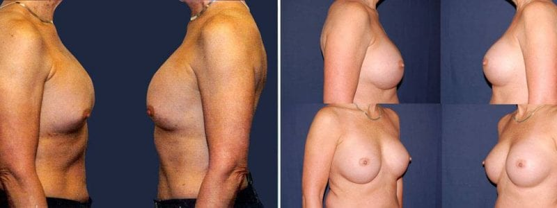 103 Secondary Breast Implants Before and After Photo