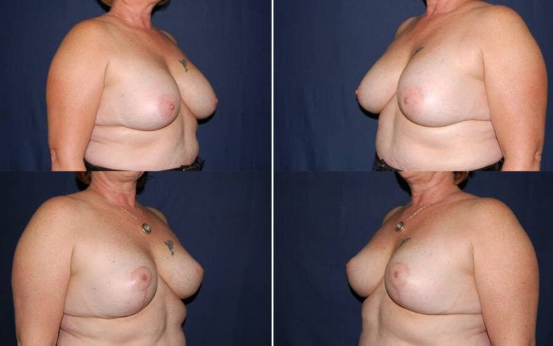 100 Secondary Breast Procedure Before and After Photo