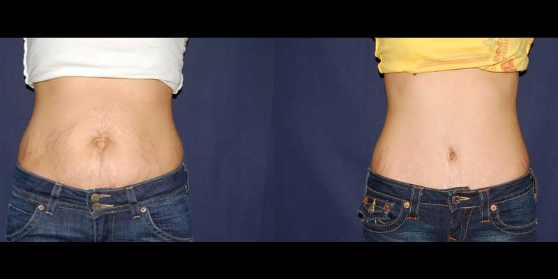 275 Tummy Tuck before and after