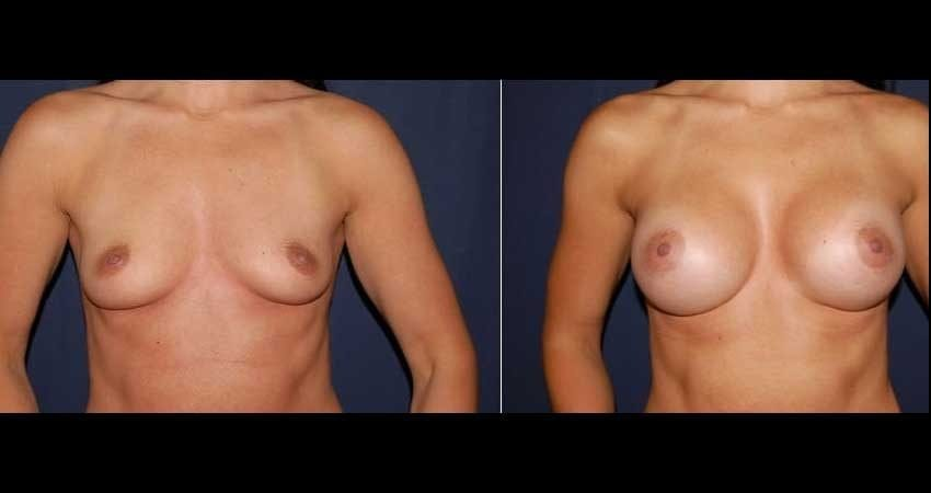 Breast Augmentation Before and After 28