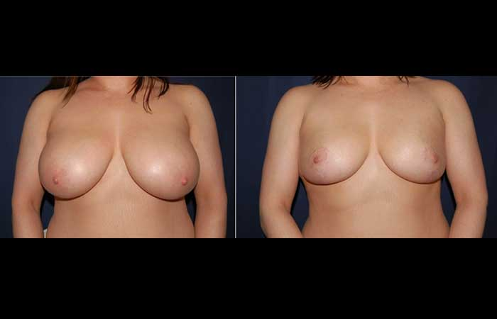276 breast reduction before and after