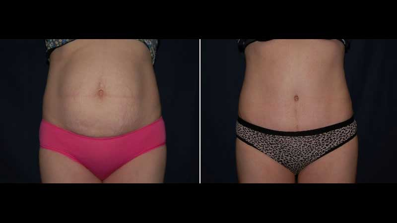 266 Abdominoplasty photo before and after