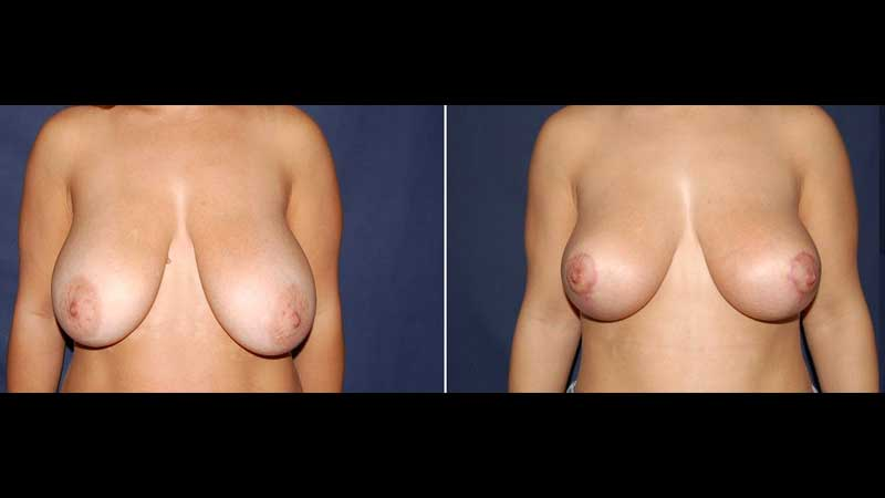 Breast Lift Before and after image 18