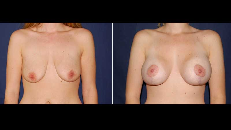 Breast Lift with Implants Photo 19