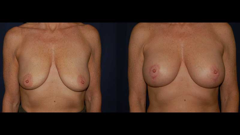 Breast Lift with Implants 22