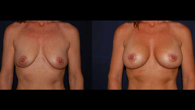 Breast Lift with implants photo 21