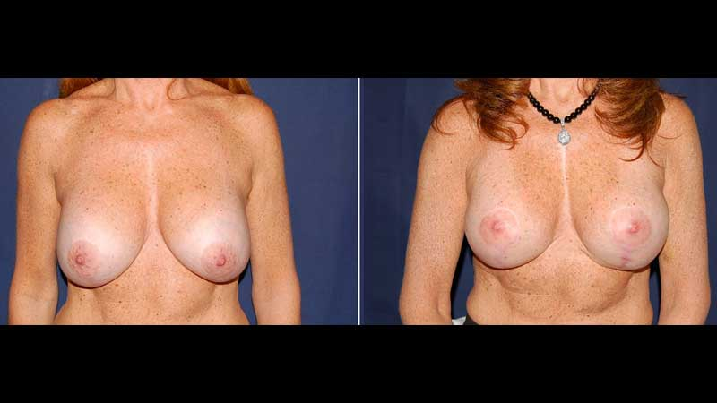 Breast Lift with Implants 20