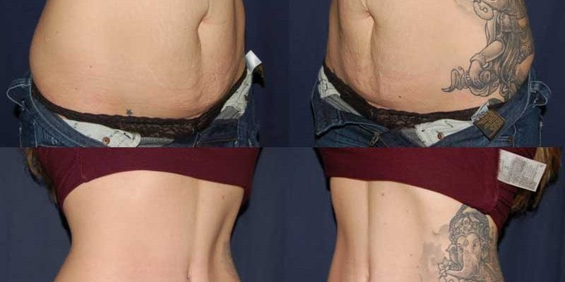 Tummy Tuck Photos Before & After