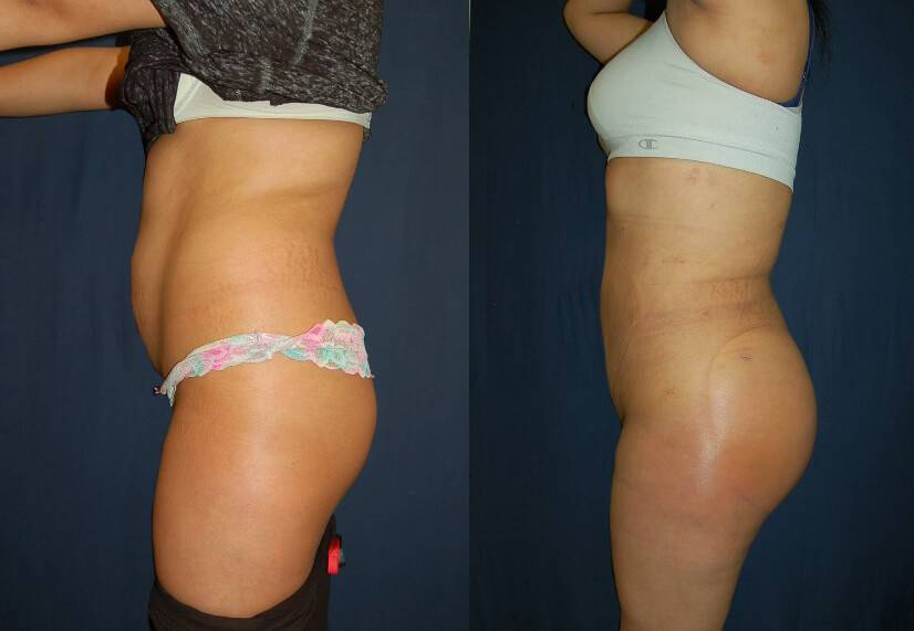 Brazilian Butt Lift Before And After Pictures 31