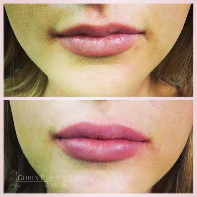 before and after face treatment